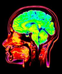 MRI scan of the head showing the brain highlighted in green